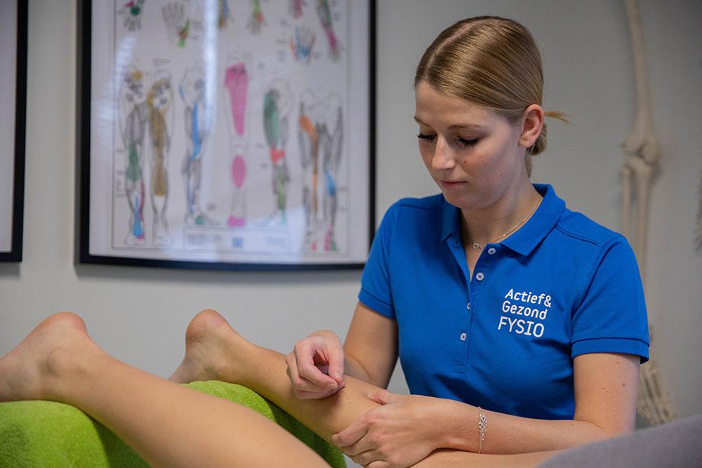 Afbeelding behandeling dry needling door fysiotherapeut in den haag